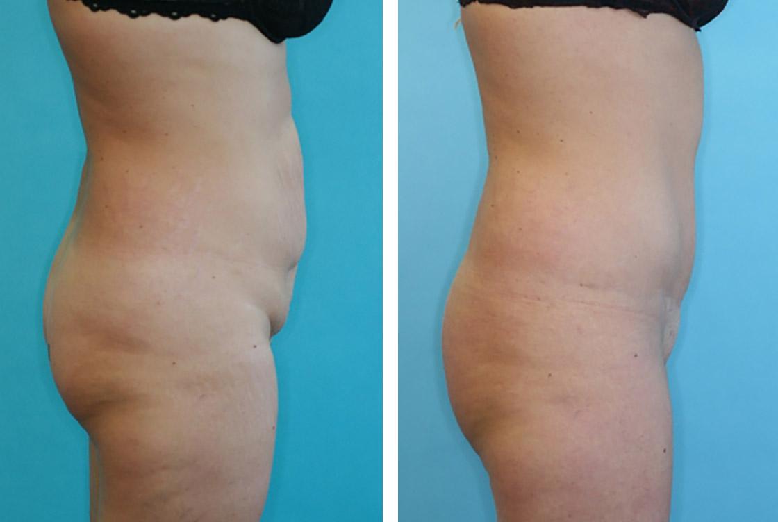 Bas du corps, abdominoplastie - image avant-après