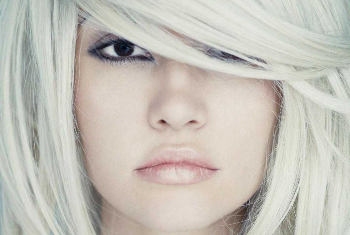 Augmentation des lèvres - image avant-après