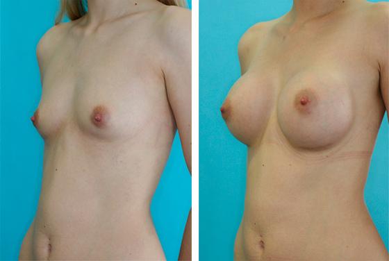 Augmentation mammaire - image avant-après