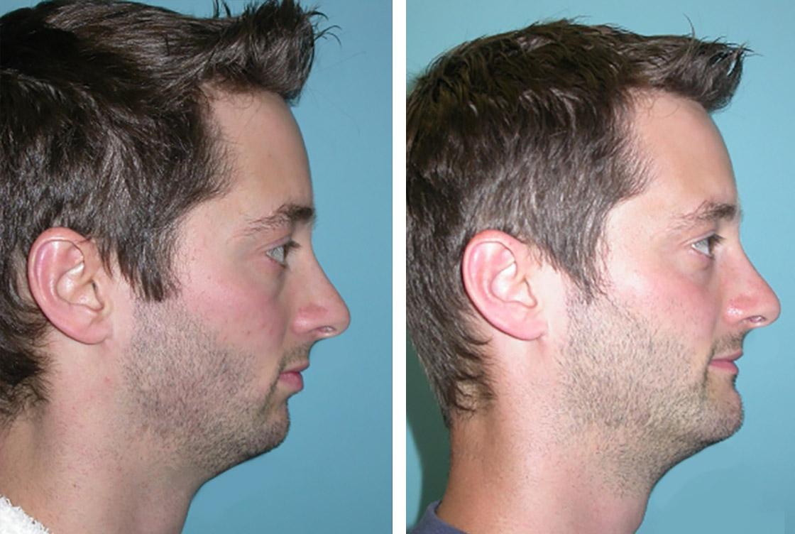 Correction du menton - image avant-après