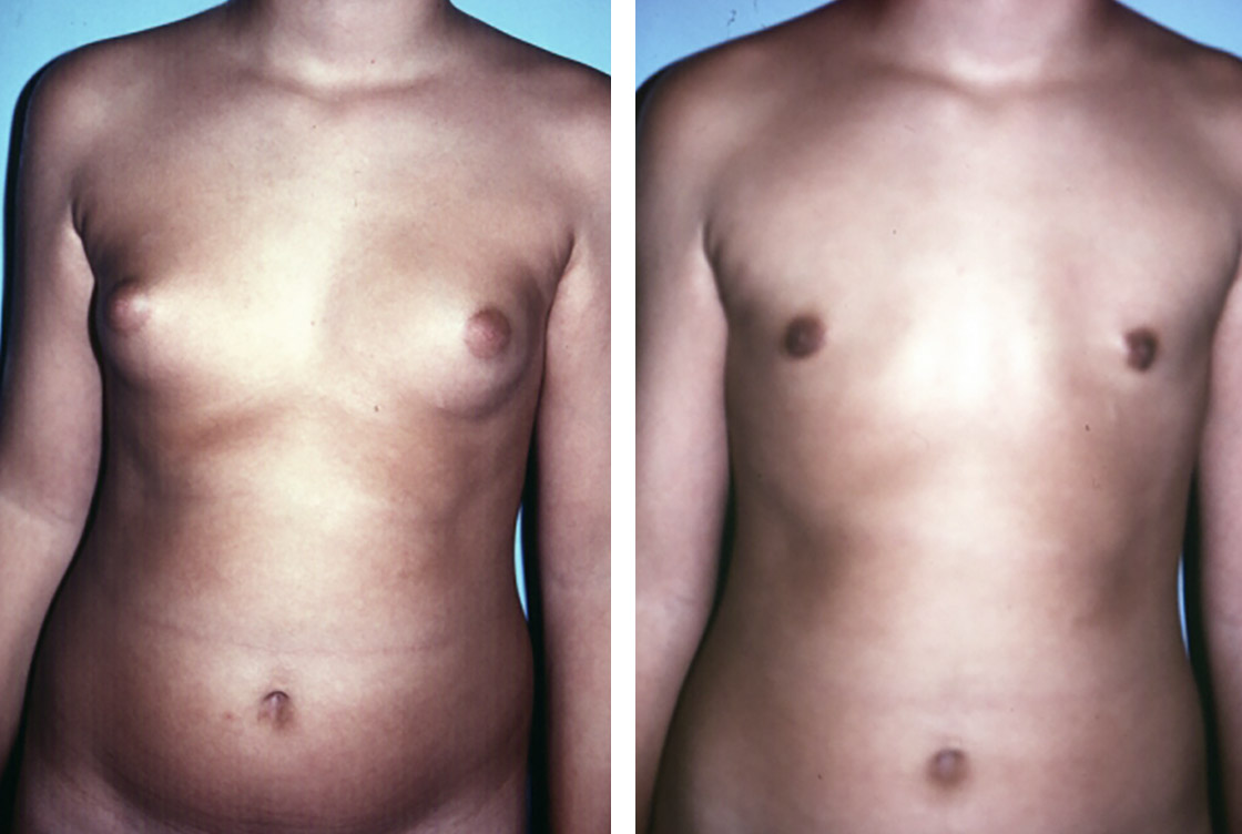 Réduction de la poitrine masculine - image avant-après