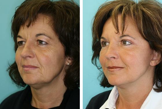 Lifting facial - image avant-après