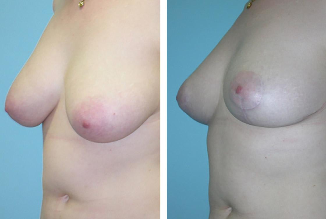 Remodelage de la poitrine - image avant-après
