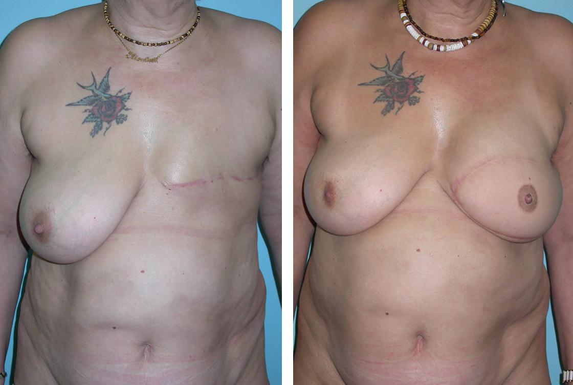 Reconstruction mammaire - image avant-après