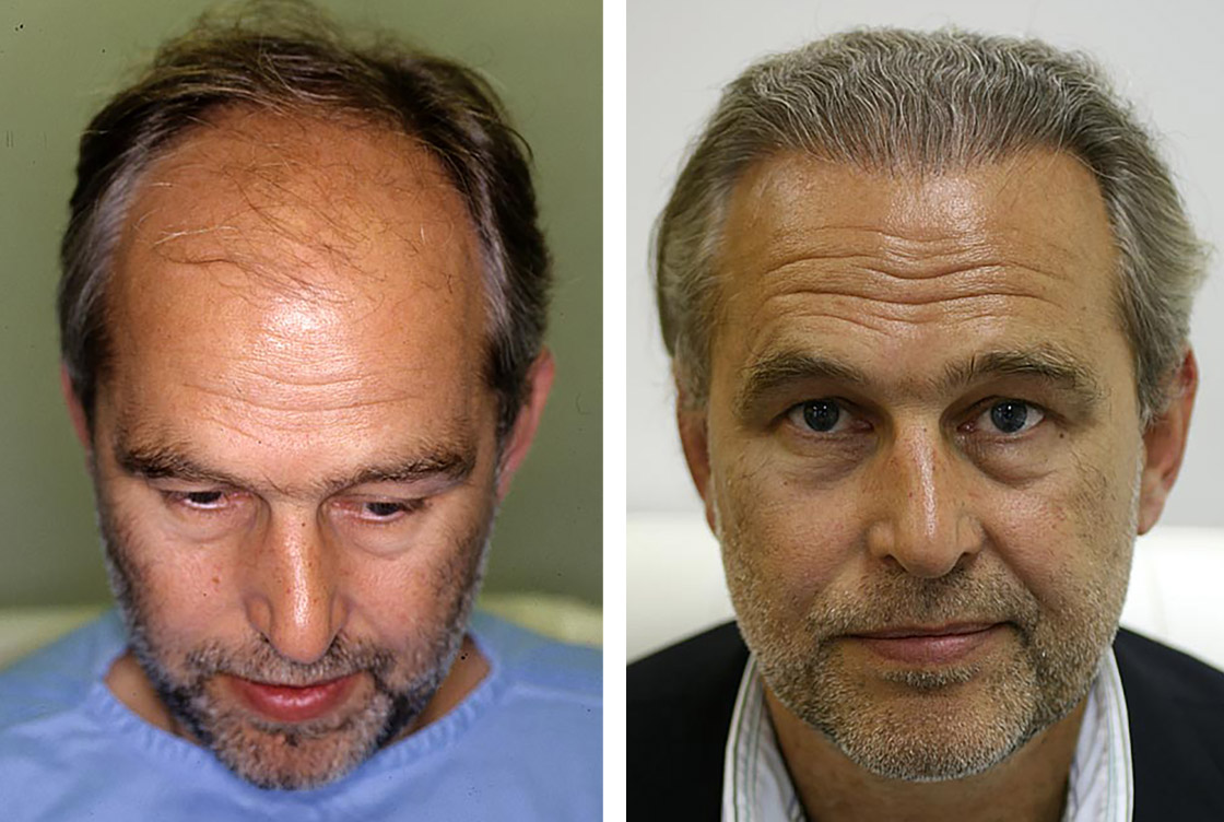 Transplantation de cheveux - image avant-après