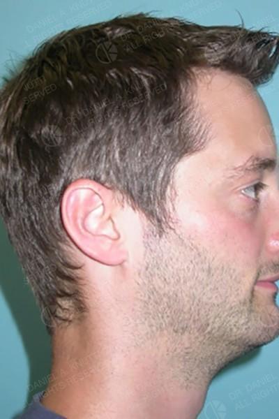 Vue frontale - après
